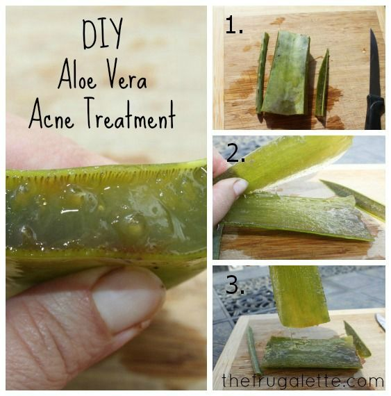 DIY acne treatment using an aloe vera plant. Thin layer on face for a few minutes then rinse off with water