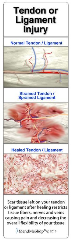 Scar tissue will grow in to protect your knee injury, but the scar tissue will attach to everything resulting in a hard fusing together of tendon/ligament tissue - reducing mobility.