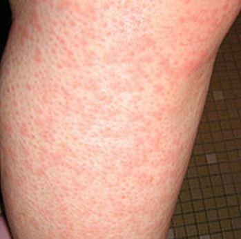 """Cholinergic Urticaria (Physical Urticaria, Heat Rash """"Itchy pants syndrome,"""" diabetes, restless leg syndrome, mystery illness"""