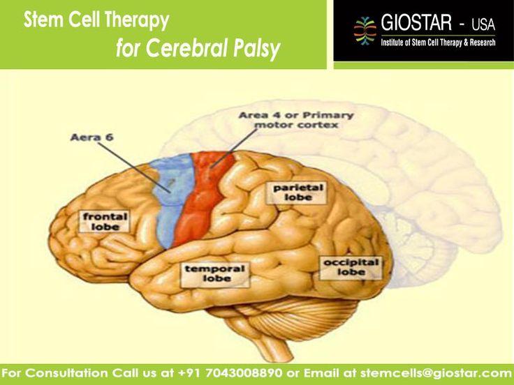 for paralysis facial cells stem