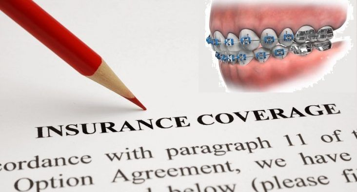 Insurance Cover Braces What You Need To Know Dental Insurance