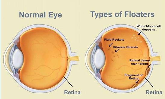 An eye floater looks like a speck in your vision that moves when you look around. Eye floaters vary in shape and size and usually appear after the age of 50. You'll usually see your eye floaters when you look at a light-colored, plain wall, or the sky. They may be gray, white, black, or transparent. Various things can cause floaters. Some are harmless but others can be serious. You should know the difference. What Causes Floaters? The jelly-lik