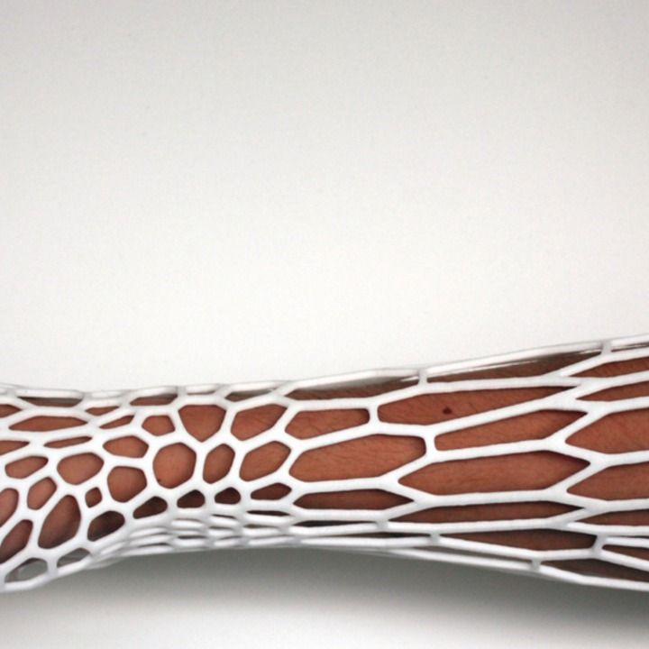 A New Way to Heal Broken Bones: 3D-Printed Casts