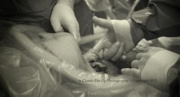 Nevaeh, (via Caesarean section) Entering the World Grabs doctor's fingers http://justpiper.com/2013/01/nevaeh-via-caesarean-section-entering-the-world-grabs-doctors-fingers/