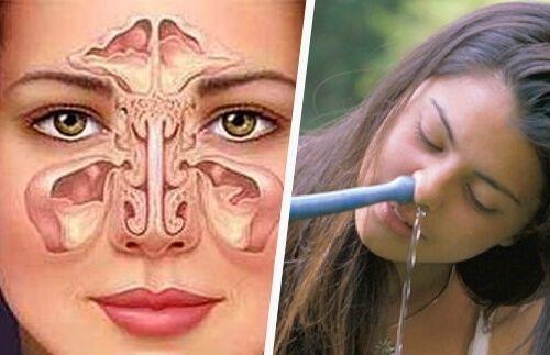 Rimedio semplici e naturali per la sinusite ed evitare l'accumulo di muco