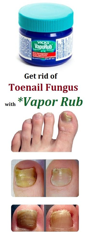 How to get rid of toe fungus with vicks
