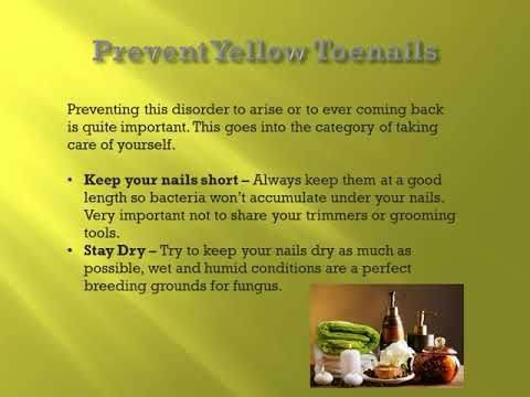 Yellow Toenail Remedies https://www.youtube.com/watch?v=M4QQwbsGtJY&t=1s Can't Seem To Find A Permanent Cure For Your Yellow Toenails? Take A Look At This Video