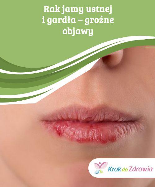 Rak jamy ustnej i gardła – groźne #objawy  Rak jamy #ustnej i gardła ma objawy #podobne do wielu #innych chorób, ale nie wolno ich ignorować. Sam fakt, że nie palisz jeszcze nie #chroni cię #przed niebezpieczeństwem.
