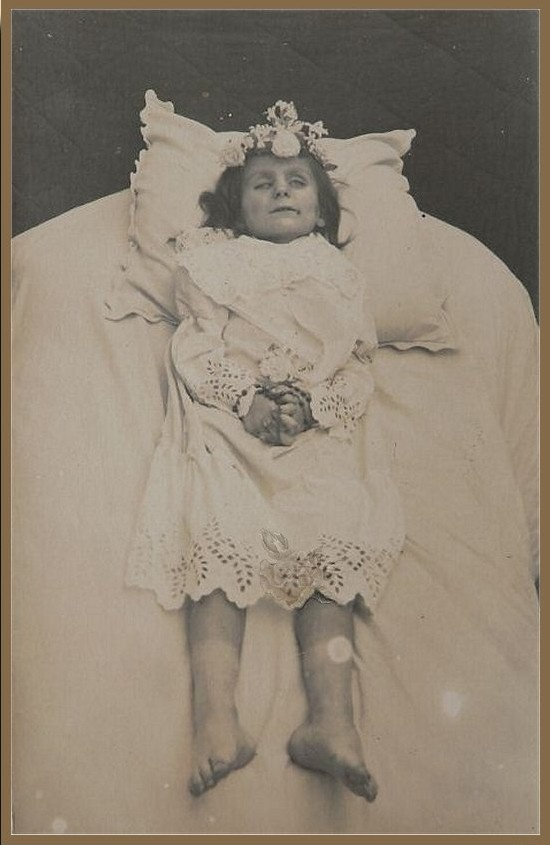 The oldest of the three sisters. Looks as if the body had begun to purge. She must have died first. Poor little girls. Poor parents.