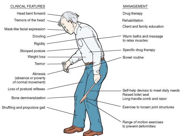 the features of parkinsons disease The four most common symptoms of parkinson's disease are tremor the primary motor symptoms of pd are the symptoms that are the key characteristics of the disease.