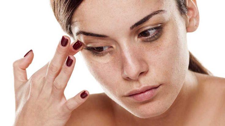 1. Миндальное масло. Аккуратно массаж миндальное масло под глазами перед сном и промойте его утром. Это также будет держать вашу кожу увлажненной. 2. Картофельный сок. Картофель имеют естественные отбеливающими свойствами. Натереть картофель ,а затем впитывать сок с ватным тампоном. Держите ватный шарик под глазами в течение 10-15 минут и смыть. 3. Розовая вода.  Замочите ватные подушечки в чистом розовой водой в течение нескольких минут и оставить их на веки в течение приблизительно 15…