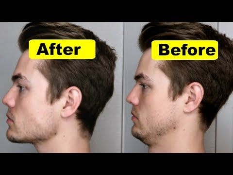 16 how to get a strong chin and jawline lose double