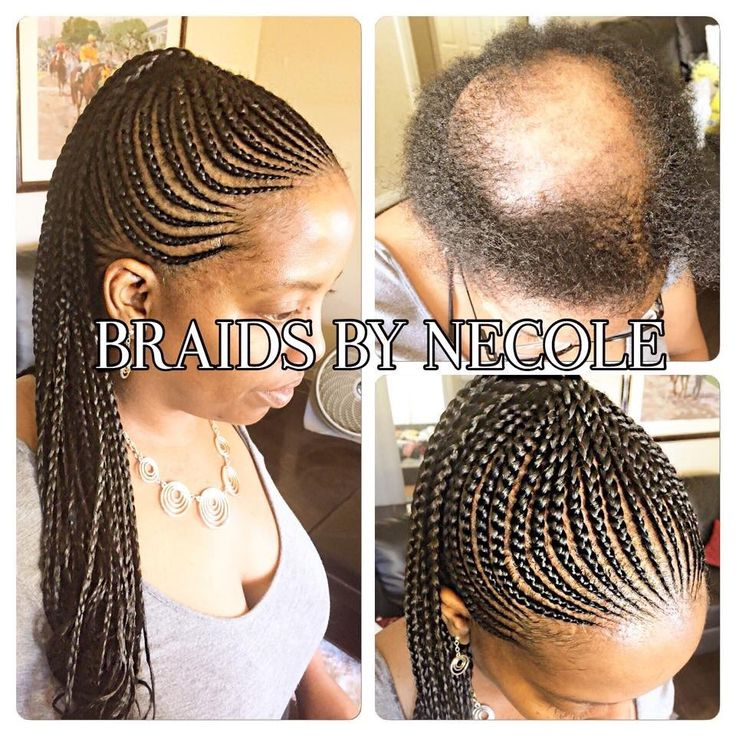 14 Extraordinary Alopecia Camouflage Cornrows By Braids By Necole - Black Hair Information