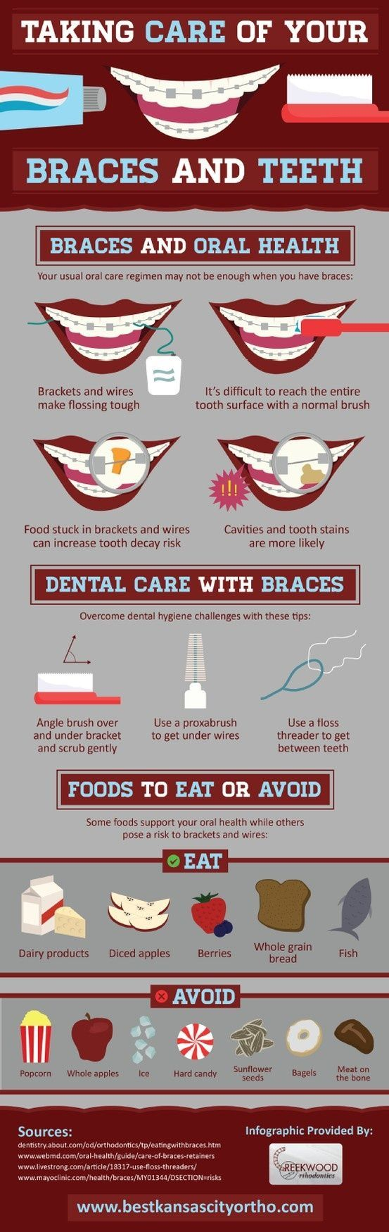 Wearing braces? If so, cleaning your teeth may be more difficult than it was without these orthodontic devices! Take a look at this Kansas City braces infographic for professional orthodontist tips for maintaining oral health during this treatment.  #DentistGrantsville