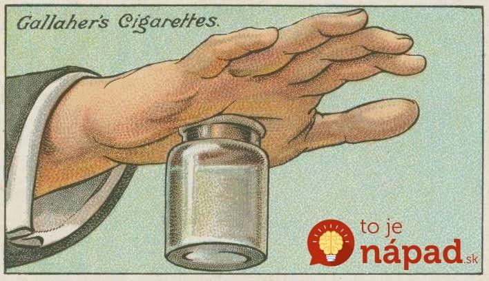 Pinzetu ani neberte do rúk, toto funguje perfektne: 100 rokov starý trik, ako bezbolestne vybrať zapichnutú triesku za pár sekúnd!