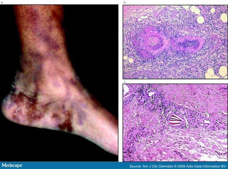 100+ Livedo Reticularis Treatment – yasminroohi