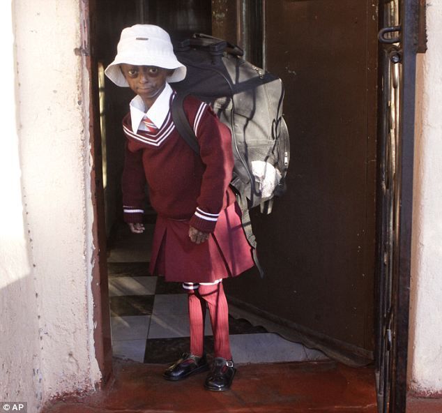 Meet the brave 12-year-old who is the first black child ever diagnosed with fatal 'Benjamin Button' disorder rapidly aging her.Ontlametse Phalatse lives in South Africa with her mother and dreams of being a psychologist. Her father left when she was 3 and she and her mother live on assistance Flies to Boston twice a year for treatment thanks to a charitable foundation Progeria sufferers rarely live past 21.