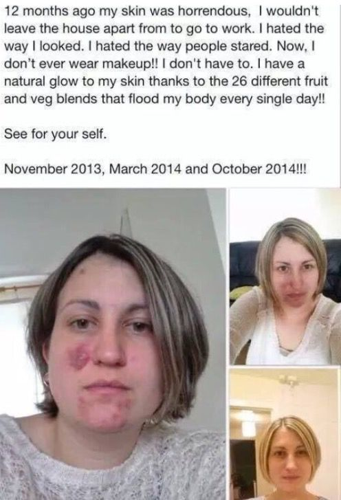 ✨PREMUIM CAPSULES RESULTS✨  Ah thank you Hun for sharing your results with us , your skin looks absolutely stunning ✨so pleased for you   This amazing company just keeps on getting better and better as they have now upped the different types of fruit , berries and vegetables from 26 to 30 and the price hasn't changed amazing !!  Feeding our bodies with even more nutrients for the same PRICE !!