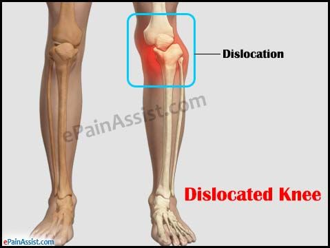 Knee Dislocation or Dislocated Knee Read: http://www.epainassist.com/sports-injuries/knee-injuries/knee-dislocation-or-dislocated-knee