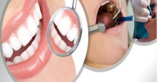 Looking for best dentists in Indirapuram? Aura Dental Avenue is a specialist dental clinic in Indrapuram. Book appointment call now 9999220999.