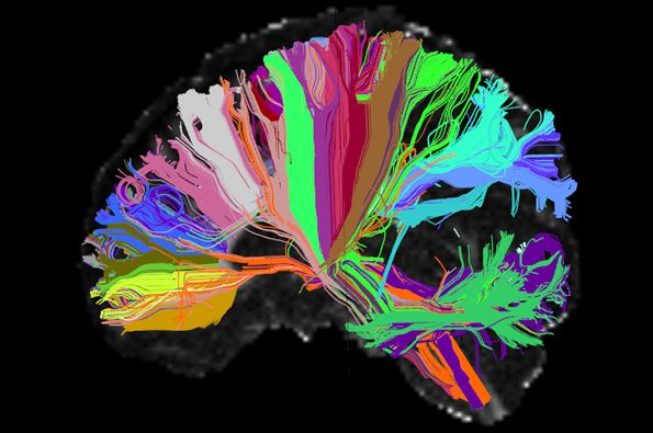 A new study found significant changes in white matter pathways in the brains of individuals with autism spectrum disorder (ASD) using a novel technique called automated fiber quantification (AFQ).