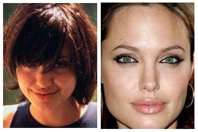 Angelina Jolie Plastic Surgery Nose Job Before And After