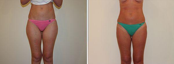 #breidahl #brighton #Liposuction #Surgeon #liposuction