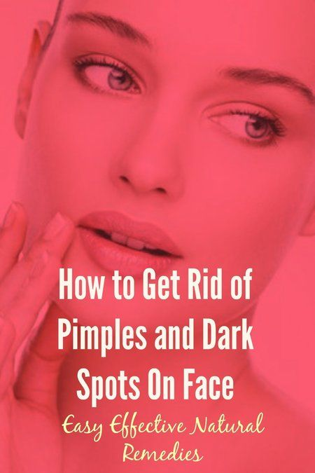 how to get rid of white pimples on face naturally