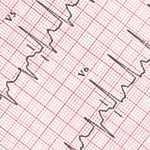 Supraventricular tachycardia: symptoms, diagnosis and treatment