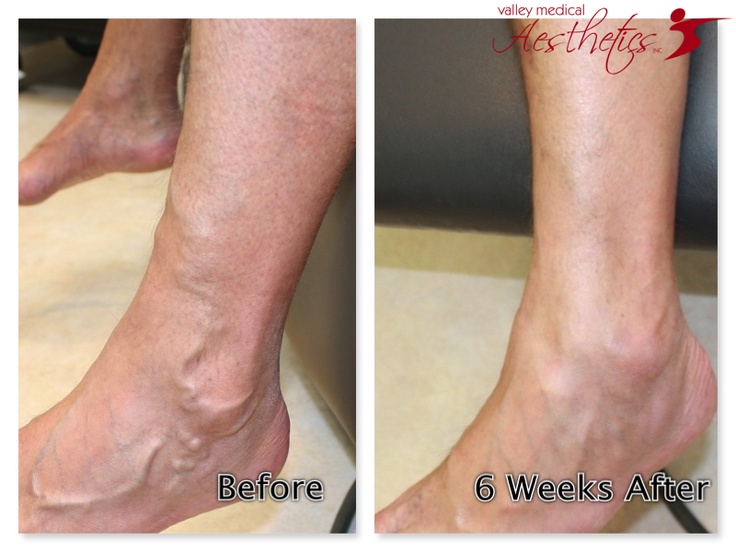 12 Best Sclerotherapy Images On Pinterest  Compression. Top Accounting Software Mac College San Jose. Car Insurance Texas Quotes Treatment Of Hep C. Broward College Nursing Cmf Business Supplies. Divorce Lawyers In Toledo Ohio. Mr Ed The Talking Horse Best Insurance Website. Cheap Home Phone Service With Internet. Insurance Companies Raleigh Nc. Importance Of Time Management