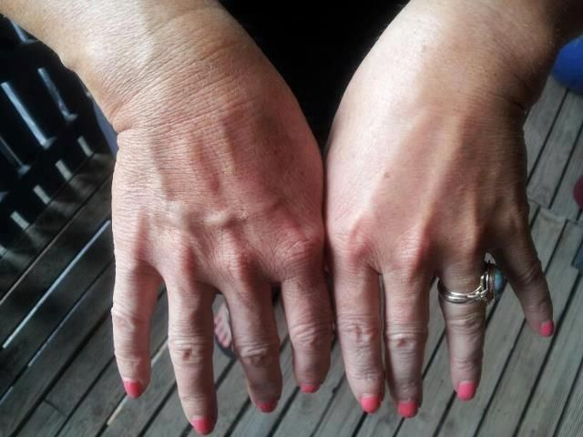 Fantastic Results for Meagan. She used the Luminesce line on just one hand for the first 6 weeks!