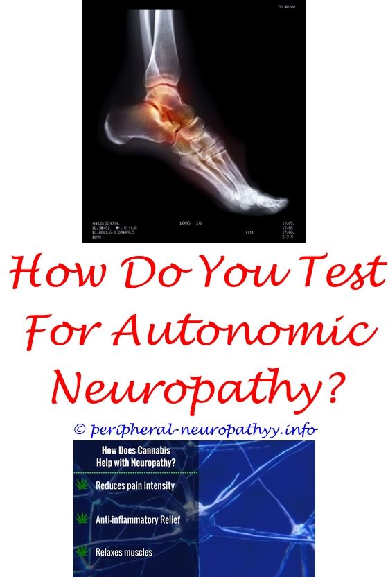 neuropathy treatment group complaints - which vitamin causes peripheral neuropathy.best treatment diabetic neuropathy feet essential oil blend for neuropathy small nerve fiber neuropathy and ms 1069226968