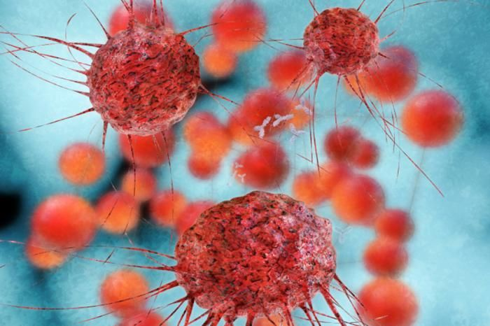 Scientists identify new gene that drives triple-negative breast cancer - Medical News Today