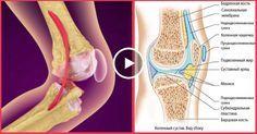 Вылечи колени и восстанови кости и суставы с этим рецептом