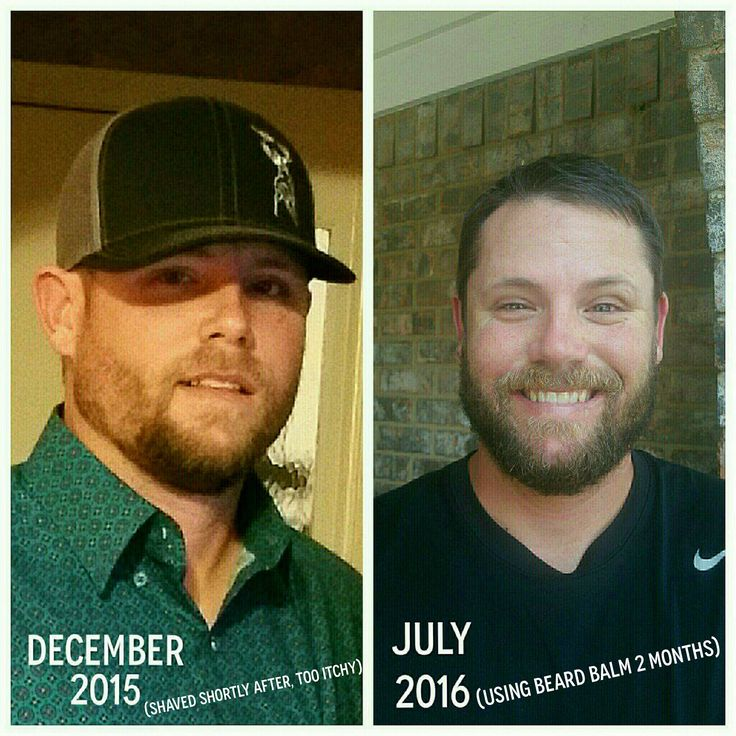 """My husband has been trying to grow a beard, but he always had those patches that would NEVER grow. After PHE introduced its Beard Balm, he gave it a try - and look at these results! The bald patches are pretty much non-existent, and he was able to let his beard grow without itchy, irritating dry skin!"" - Tori B."