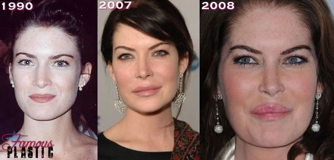 priscilla presley before surgery | Since it seems like only the Patricia Heaton plastic surgery question ...