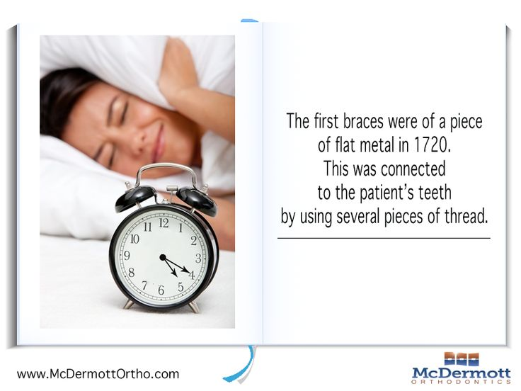 Orthodontic Fact #6 The first braces were of a piece of flat metal in 1720. This was connected to the patient's teeth by using several pieces of thread. - McDermott Orthodontist, 708 Elm Ave. E., Delano, MN 55328, TEL: 763-972-4444 #orthodontist #invisalign #braces