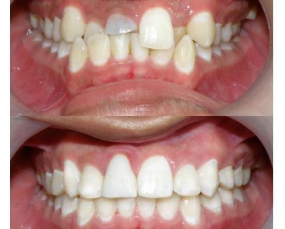 El Dr Orlando Martinez, ortodoncista en Cartagena, ofrece los servicios de ortopedia de los maxilares, tratamiento temprano, ortodoncia correctiva, ortodoncia prequirurgica, brackets estéticos, brackets convencionales, brackets de autoligado Sistema Damon, Invisalign, mini implantes, presentación de casos computarizados, retenedores fijos y removibles