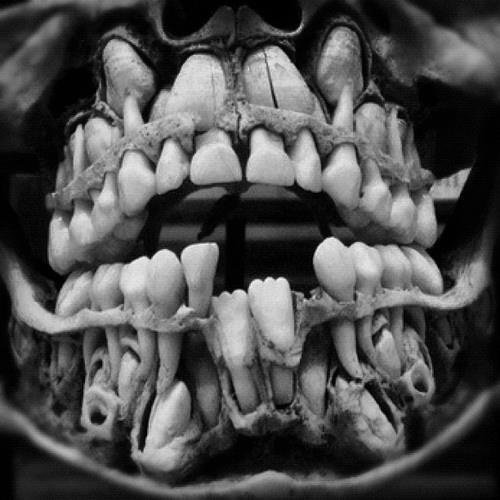 Child's skull displaying emerging permanent teeth. | She ...
