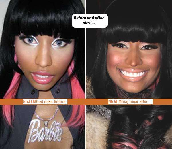 Nicki Minaj Plastic Surgery Before After