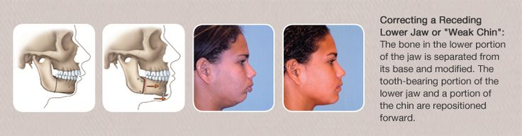 Corrective Jaw Surgery  Corrective jaw, or orthognathic surgery is performed by an oral and maxillofacial surgeon (OMS) to correct a wide range of minor and major skeletal and dental irregularities, including the misalignment of jaws and teeth. Surgery can improve chewing, speaking and breathing. While the patient's appearance may be dramatically enhanced as a result of their surgery, orthognathic surgery is performed to correct functional problems.  Visit: www.oralmaxillofacialsurgeries.com…