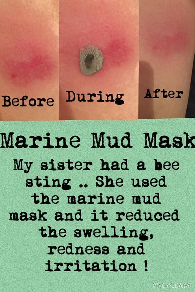 This is amazing! The Marine Mud Mask on a #BeeSting ❤️ Enter CA00173383 for a…
