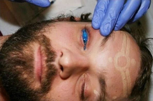 Olhos Azuis: Canadense maluco faz a primeira tatuagem no olho do mundo veja fotos | Super Pérolas
