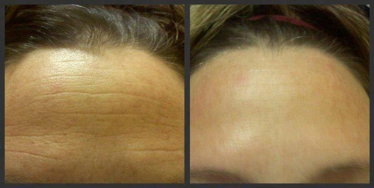 Results after 2 uses of the Rodan + Fields Macro ...