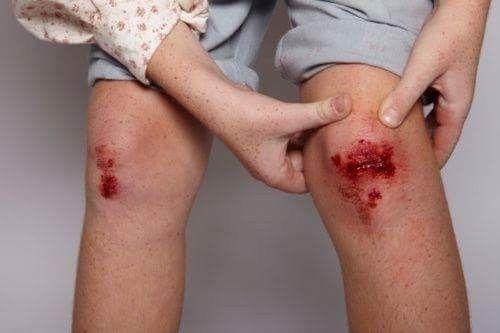 Noi che le ginocchia sbucciate erano un vanto e le andavi a far vedere a turri e quando si faceva la crosta la tiravi via prima del tempo