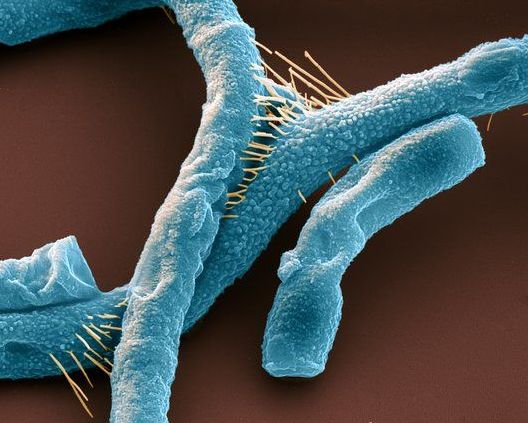 Scanning electron micrograph of Bacillus anthracis, commonly known as anthrax. These rod-shaped, Gram-positive, spore-forming bacteria can infect the skin (cutaneous anthrax), causing raised itchy lesions, the lungs (pulmonary anthrax), which is fatal unless treated quickly, and the digestive system (gastrointestinal anthrax), causing vomiting of blood and severe diarrhoea. All forms can be fatal if left untreated.
