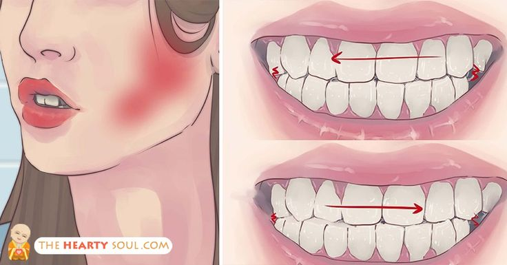 Natural Ways To Stop Grinding Teeth