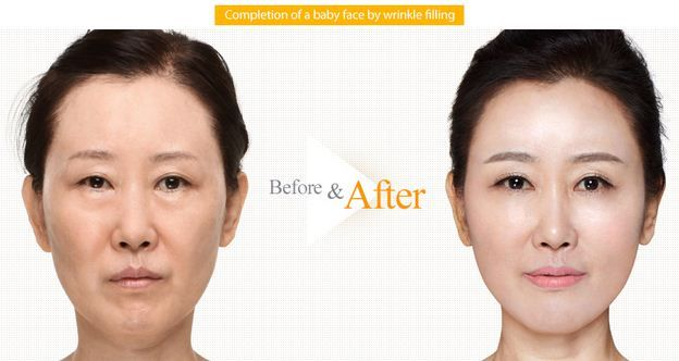 Non-surgical Baby face injections are made to remove wrinkles, frown lines and nasobial lines. It illuminates the face and brightens skin tone by collagen remodeling on dermic layer.  There is an exclusive offer on the plastic surgeries @The Line Clinic. To know more please send your queries at info@thelineclinic.com.