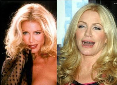 shannon tweed plastic surgery before after | Shannon Tweed Plastic Surgery Before After