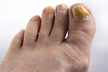 Nail Fungus Treatment Australia #IsLaserToenailFungusTreatmentEffective Post:765…